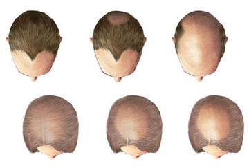 Sleep and Hair Loss: Is There a Connection?